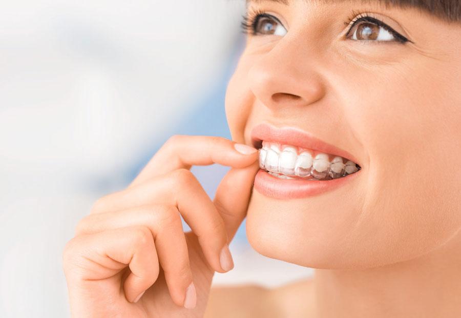 Ortodoncia invisalign es casi imperceptible