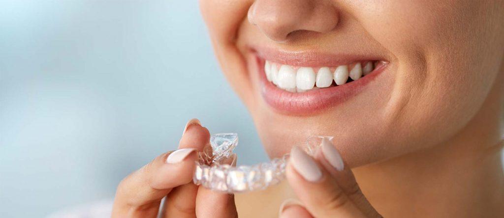 Ortodoncia invisible técnica innovadora