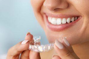 Características de la ortodoncia invisalign